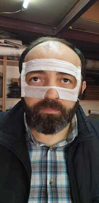 VR Gözlükler için Koruyucu ped Hijyen Göz bandı HTC Vive -100lü resmi